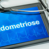 endometriose-hannover-frauenarzt
